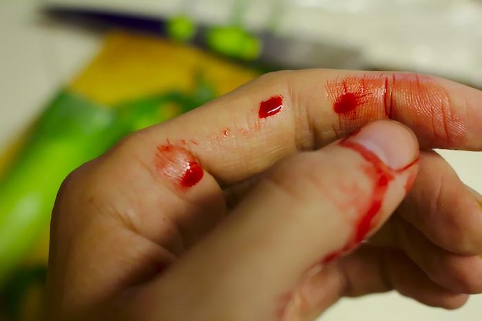 Herida provocada por un accidente de trabajo y causa de siniestralidad laboral
